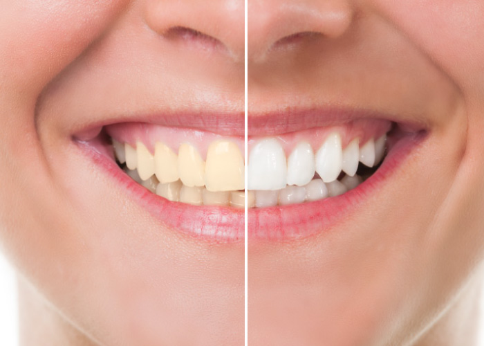 Photo of a smiling woman with the left half of the smile yellowed and the right half white after professional dental whitening