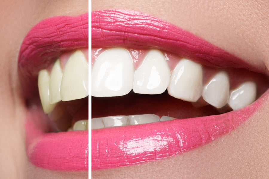 Close up of a smile before and after teeth whitening