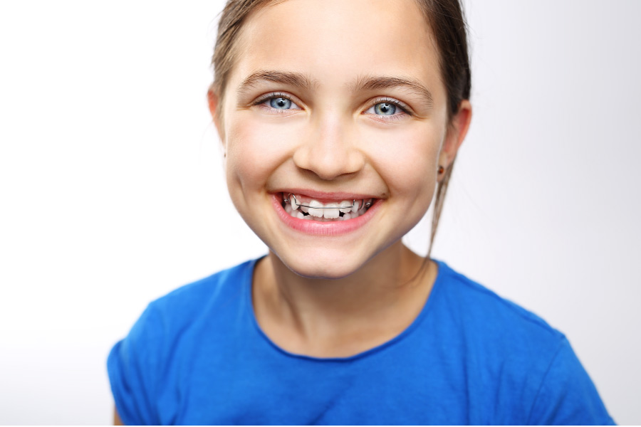 young girl smiles showing off her new braces